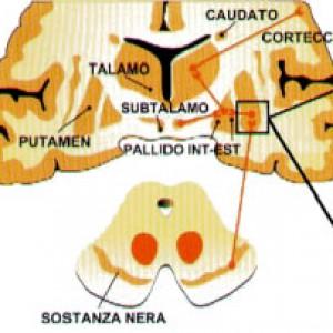 cervello parkinson